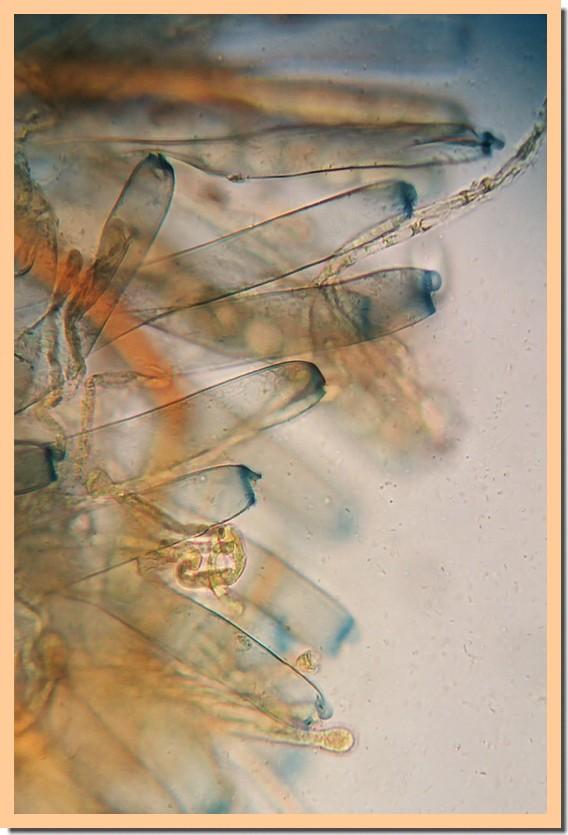 peziza vesiculosa asques2.jpg