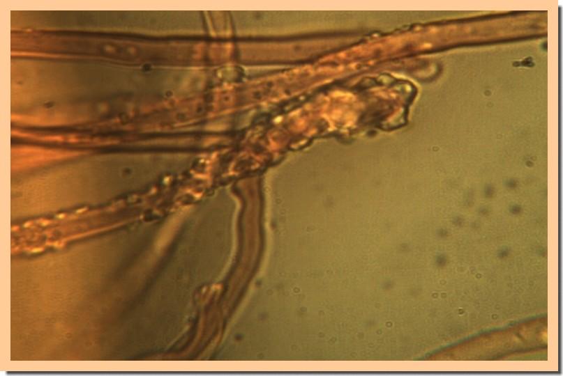 steccherinum ochraceum cystide.jpg