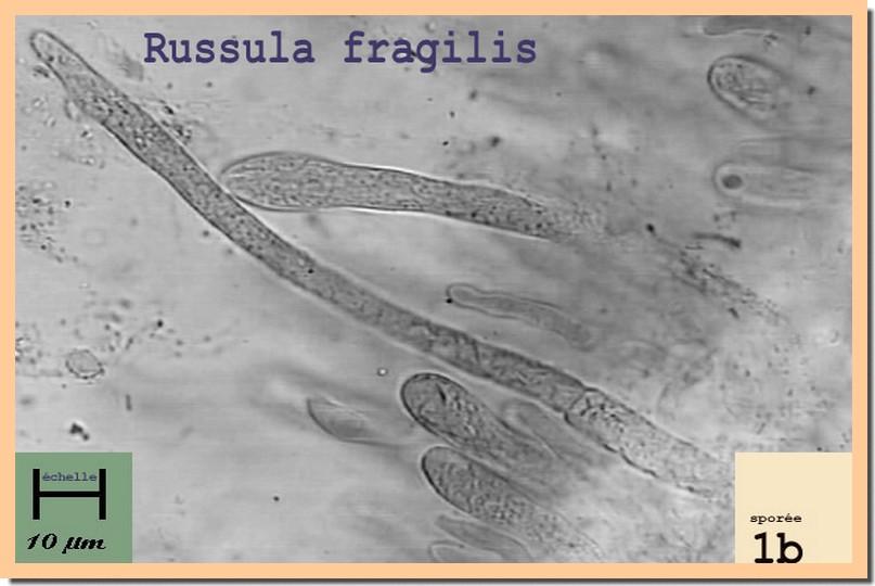 R fragilis micro.jpg