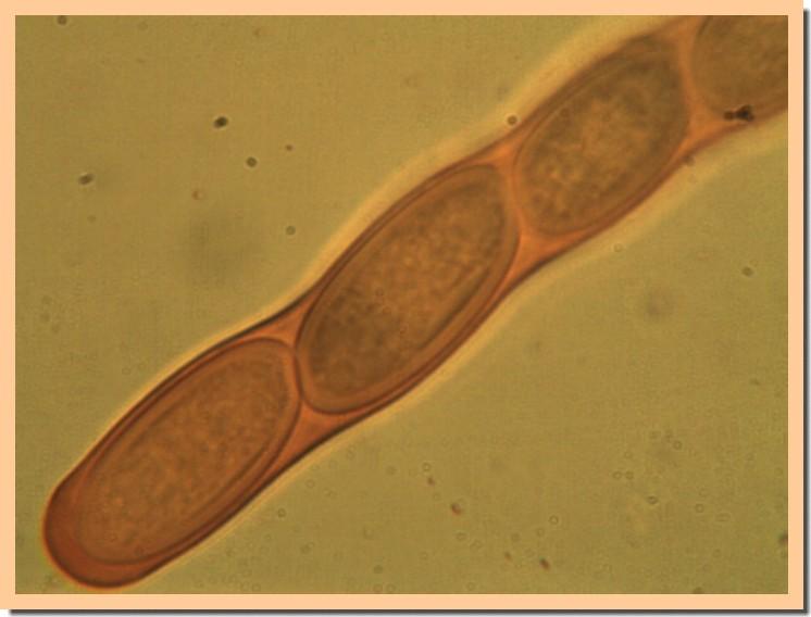 sarcocypha coccinea2.jpg